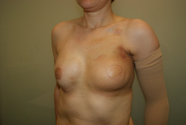 Salpingo-ooferectoma Bilateral en portadora alteracin BRCA1