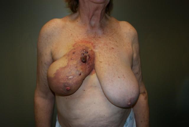 Angiosarcoma Radioinducido de Mama