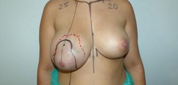 Fibroadenoma Gigante y Asimetria en Adolescente