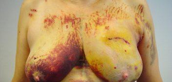Videos Complicaciones Cirugía Mamaria