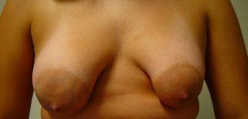 Mama Tuberosa (Tuberous Breast)