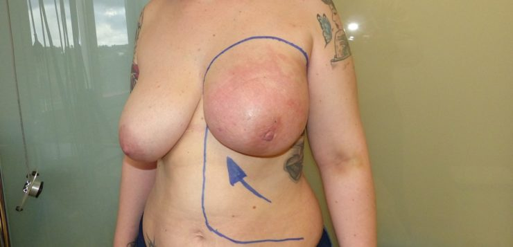 Thoracoabdominal Flap (Colgajo Tóracoabdominal)