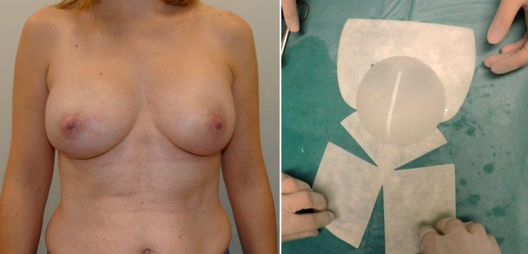 Reconstrucción Mamaria Prepectoral (Reconstrucción preservadora de Músculo)