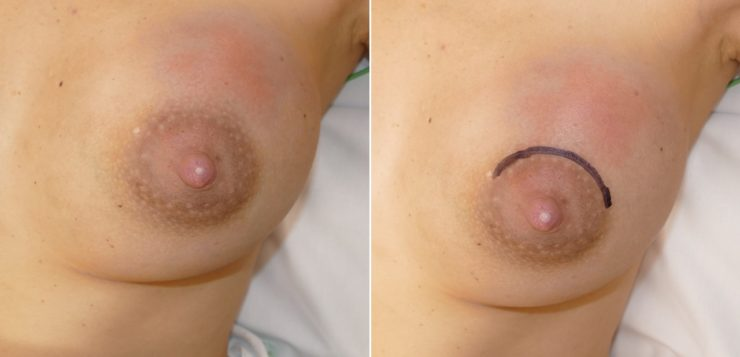Breast abscesses in breastfeeding women