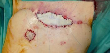 Skin Graft to cover a Skin Breast Necrosis