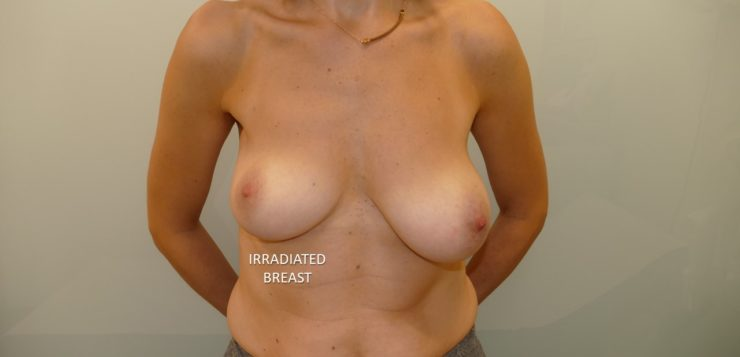 Skin-reducing mastectomy and prepectoral reconstruction in patients with BRCA mutation