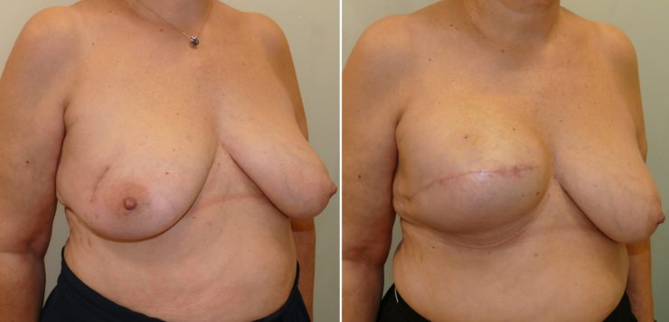 Mammary reconstruction using tissue expander and partial detachment of the pectoralis major muscle to expand the lower breast quadrants