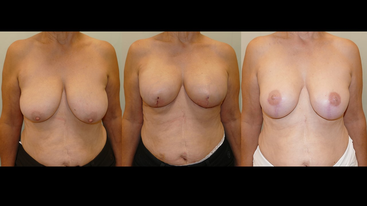 Prepectoral Reconstruction after Type 4 Skin-sparing Mastectomy. Prophylactic mastectomy for BRCA mutation