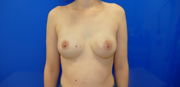 Tips for improve skin-sparing mastectomy-based reconstruction