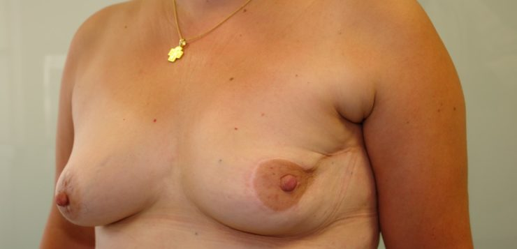 AN UNCOMFORTABLE TRUTH: COSMETIC SEQUELAES AFTER ONCOPLASTIC SURGERY OF THE BREAST